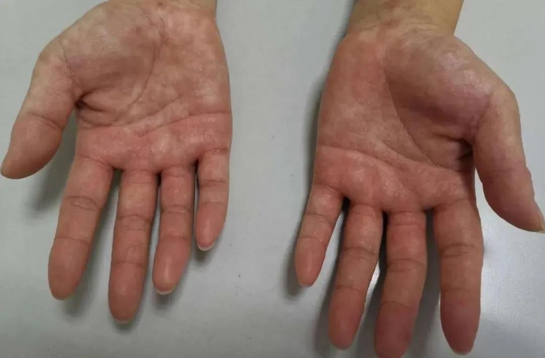 水疱 手 湿疹