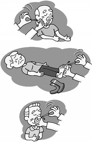 心脏病猝死发生后,马上脱掉患者袜子图片